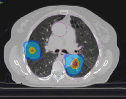 SBRT(体幹部定位放射線治療 Stereotactic Body Radiation Therapy)